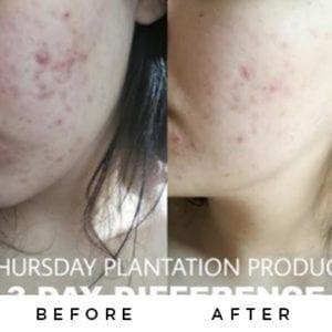 Thursday Plantation Acne Range-9572