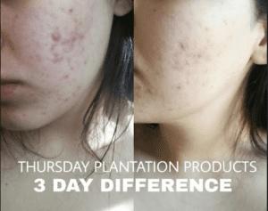 Thursday Plantation Acne Range-9313