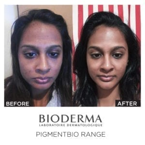 Pigmentbio Night Renewer -10260